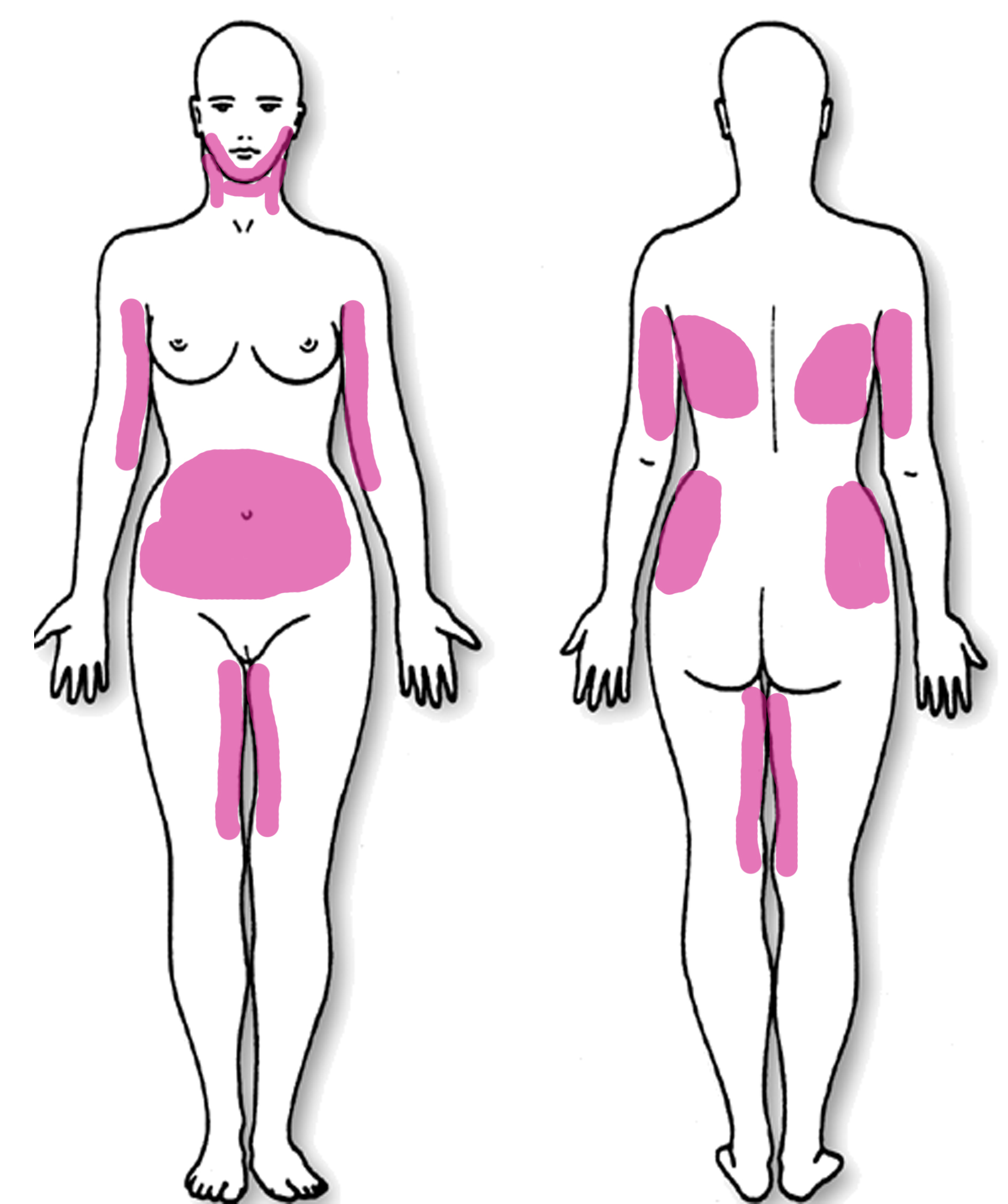 Where I'd get liposuction